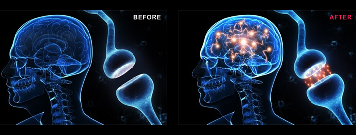 genbrain before after results