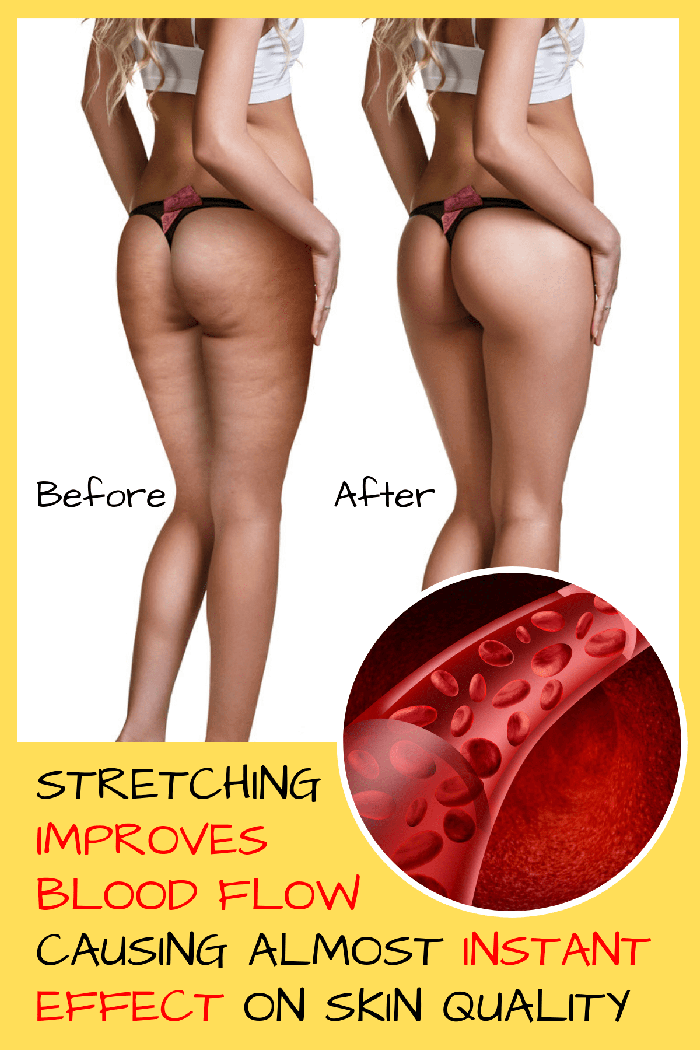 hyperbolic stretching before after